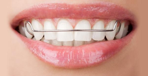 Ganzheitliche Bionator Zahnspange für Kinder